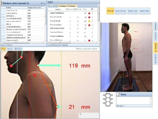 sistema-optelettronico-body-analisy-kaptur-2