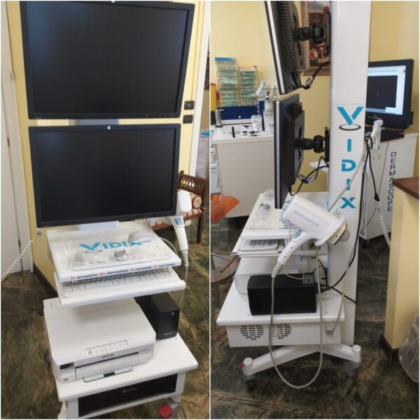 Dermatoscopio digitale VIDIX